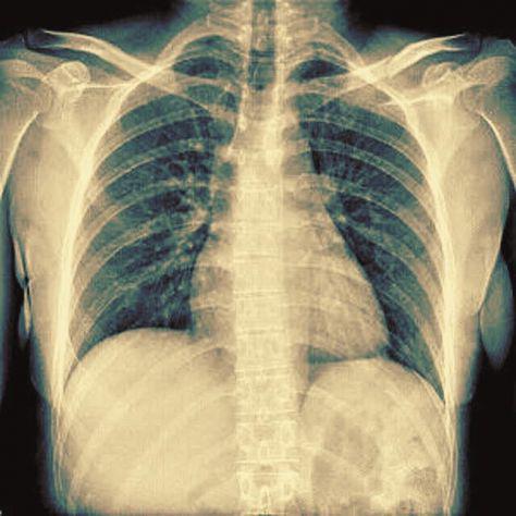 Duplicati e copie di radiografie