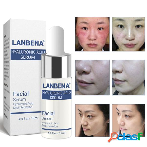 Acido ialuronico lumaca essenza idratante trattamento per l'acne riparazione sbiancante trattamento antirughe antirughe