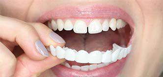 Perfect smile veneers - regalati un sorriso perfetto!
