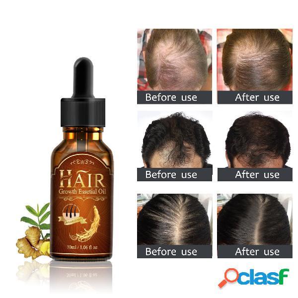 Capelli fluido per la crescita capelli essenza nutriente per la cura essenza per la crescita